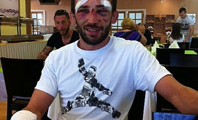 """Braveheart"" Blazicevic made it to the end of the match with broken fist, nose, cheekbone…(FOTO)"